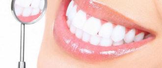 Способы отбеливания зубов дома и в клинике