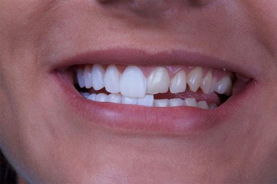 Кому стоматологи рекомендуют устанавливать виниры