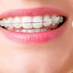 Лигатурные брекеты: металлические, керамические, сапфировые