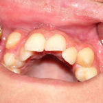 Клиновидный дефект зубов: причины и лечение