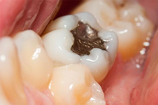 Цементная пломба на зуб — особенности и недостатки