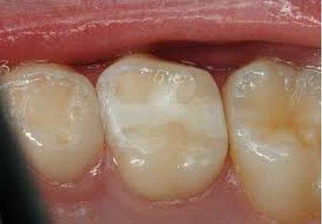 Виды зубных пломб