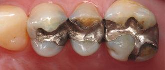 Металлические зубные пломбы