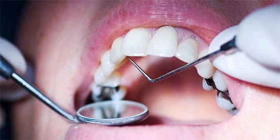 Постоянная пломба на зуб: для чего нужна, используемые материалы