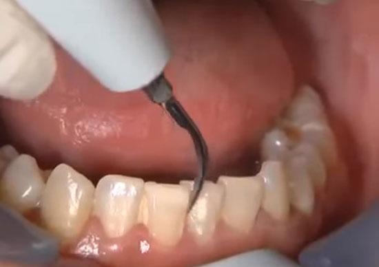 Чистка зубов скалером: плюсы и минусы, противопоказания