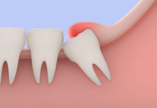 Перикоронит зуба: виды, симптомы, лечение