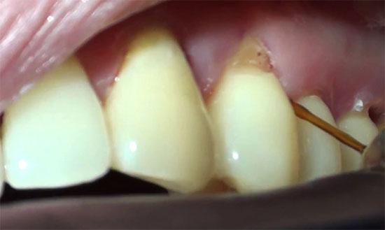 Поддесневой зубной камень – почему возникает и как удаляют