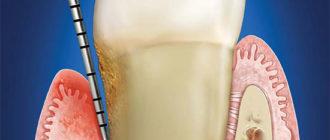 Пародонтальный карман – что это, как проявляется и лечится