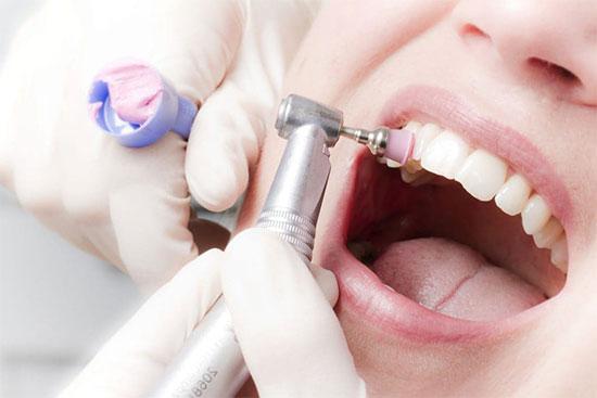 Удаление зубного налета: методы в домашних условиях и клинике