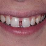 Большие промежутки между зубами – варианты решения проблемы