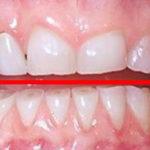 Пришлифовывание зубов – что это, как проводится