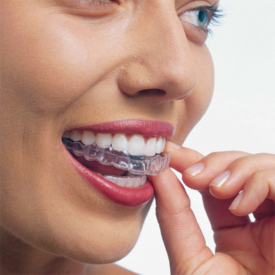 Элайнеры для зубов –плюсы и минусы, эффективность