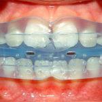 Трейнеры для зубов – что это, показания, особенности применения