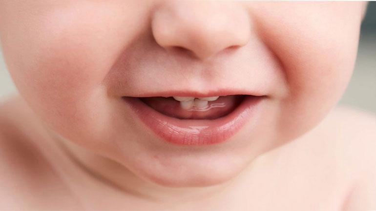 Набухла десна при прорезывании зубов – что делать