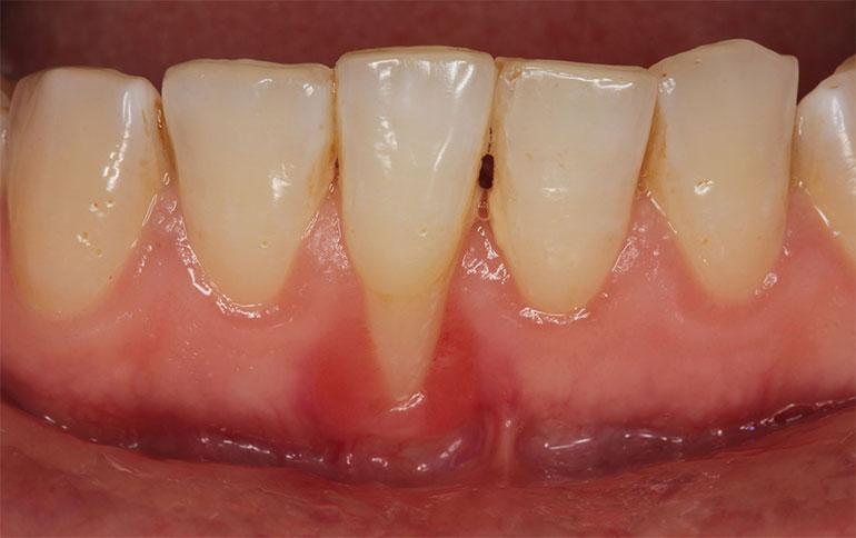 Оголение корня зуба – причины, симптомы и варианты лечения