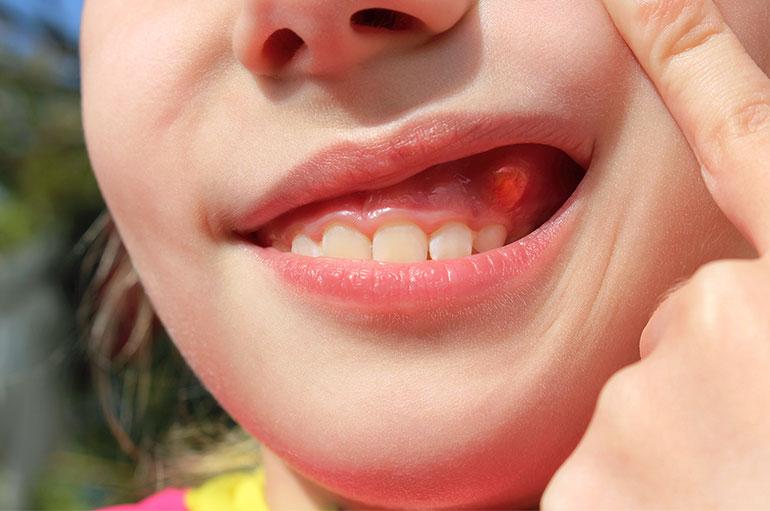 Полип на десне – причины, симптомы и способы удаления