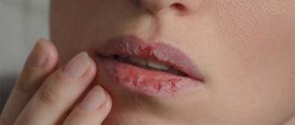 Сухость десен – причины, симптомы и лечение ксеростомии
